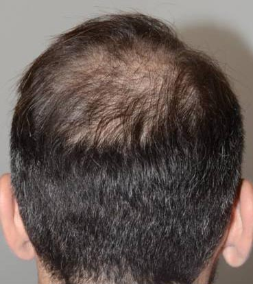 Scalp Micropigmentation Treatment 1-2