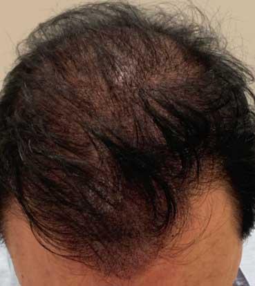 Scalp Micropigmentation Treatment 2-2