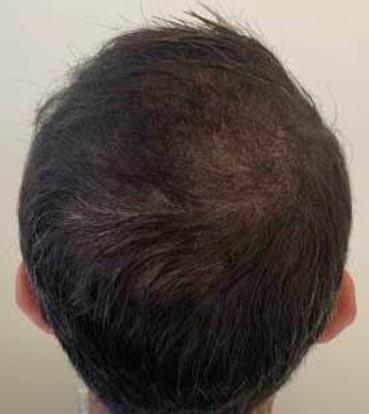 saç simülasyonu 1-1