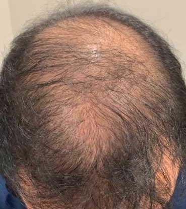saç simülasyonu 2-1