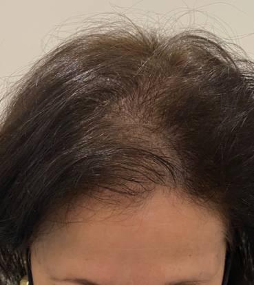 saç simülasyonu fiyatları